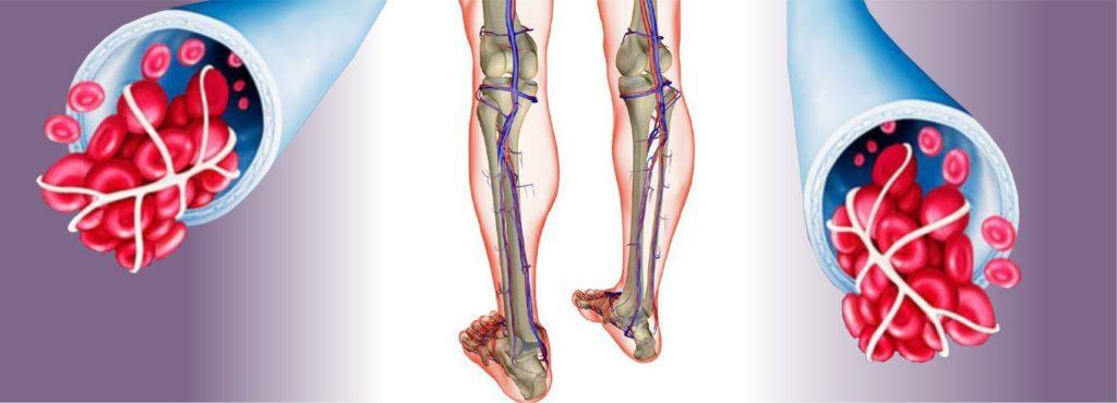 Атеросклероз сосудов нижних конечностей санатории